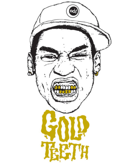 gold-teeth